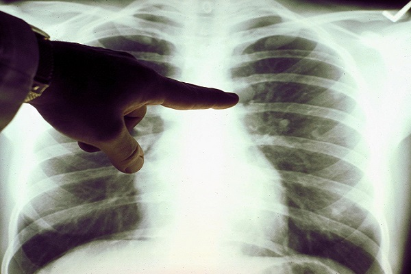 How to Detect Lung Cancer before It's Too Late