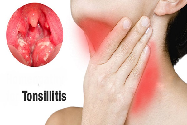 Tonsillitis | Condition Care Guide